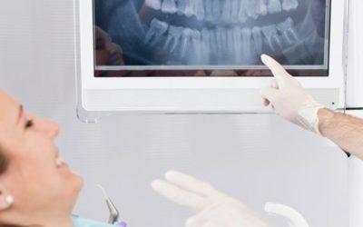 Ventajas de los implantes dentales en Murcia