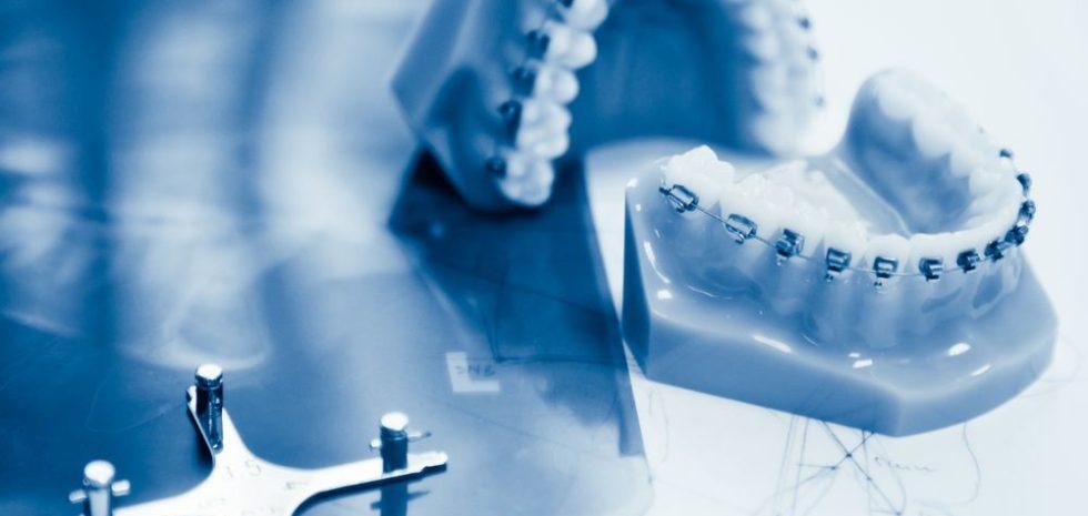 Tipos de ortodoncia en Alicante