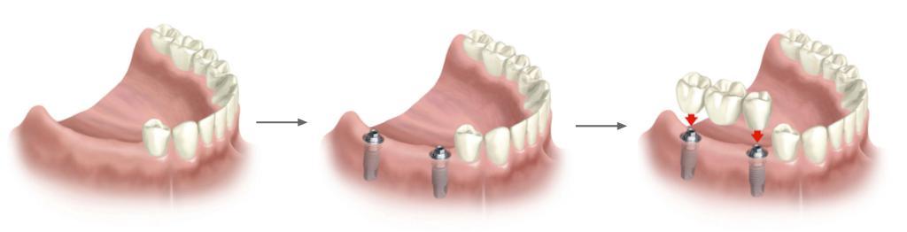 puente sobre dos implantes