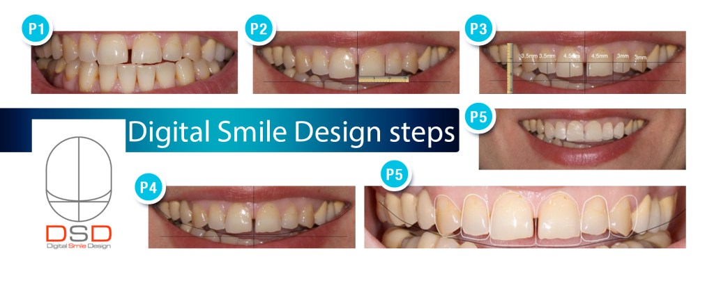 pasos digital smile design dsd