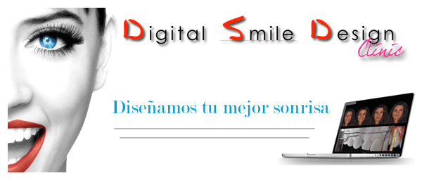 digital smile design dsd