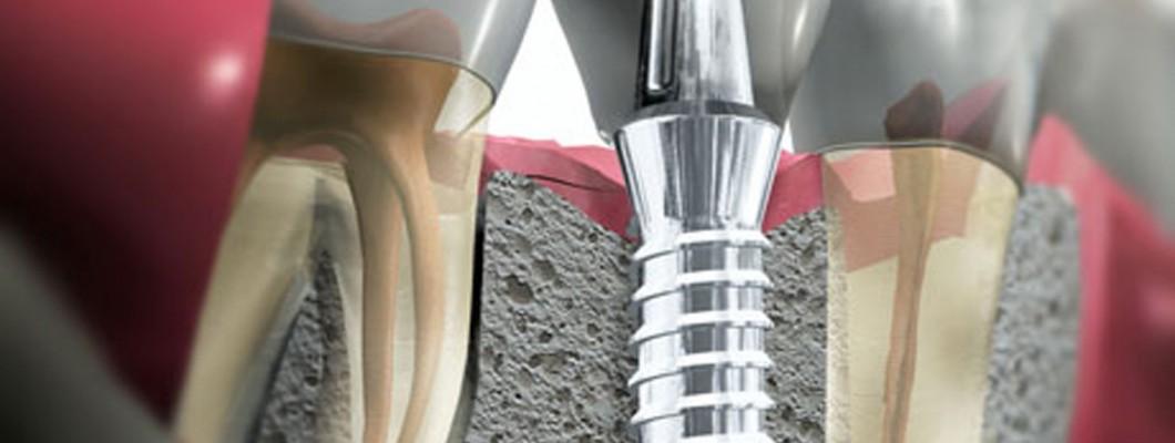 ¿me puedo poner implantes aunque no tenga hueso?