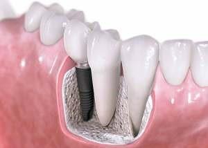 Implantes Dentales Dentista en Murcia y Elche