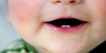 Dientes natales: Cuando los niños nacen con dientes