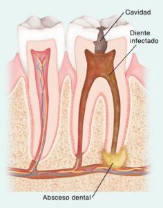 síntomas absceso dental