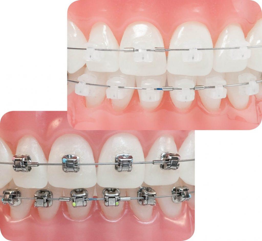 ortodoncia juvenil