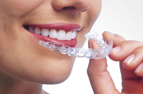 corrige problemas alineación dental