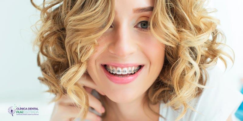 El apiñamiento dental y cómo corregirlo
