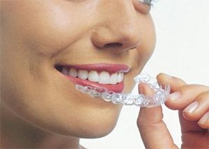 Invisalign Dentista en Murcia y Elche