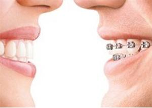 Ortodoncia Dentista en Murcia y Elche