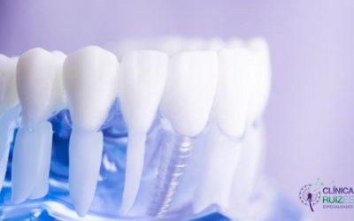 ¿Cómo elegir dentista para ponerse implantes dentales en Elche?