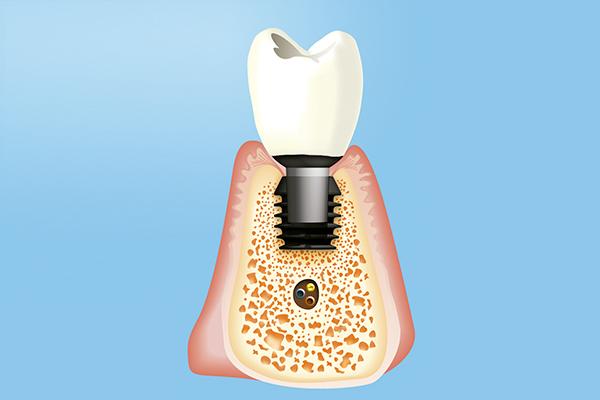 ventajas de los implantes dentales ultracortos bicon