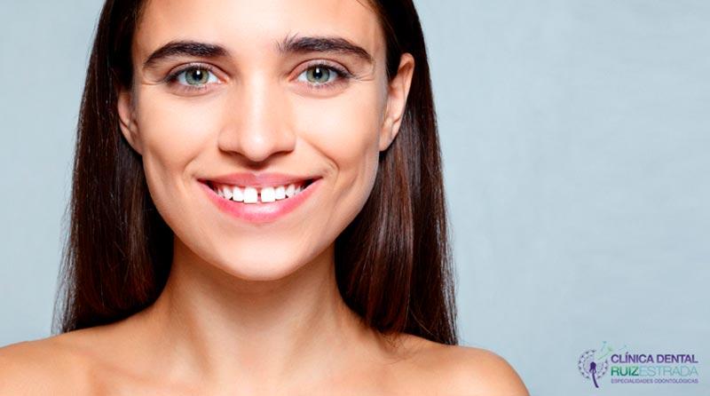 La separación de dientes o diastema: ¿cómo solucionarlo?