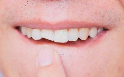 ¿Qué hago si se rompe un diente o una muela?