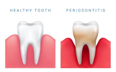 Cómo prevenir la periodontitis