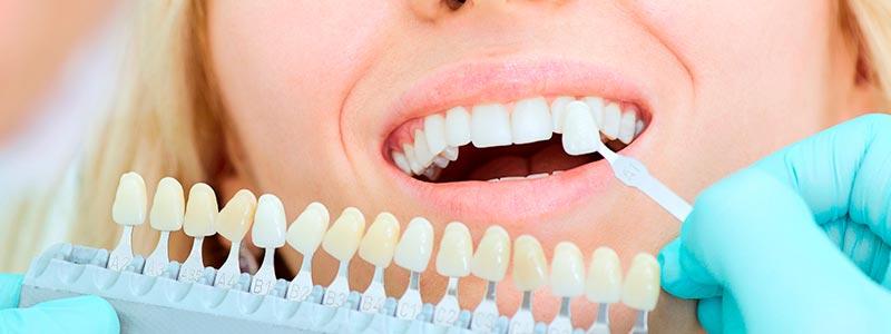 Qué son las carillas dentales y tipos